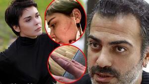 Son dakika haberler.. Sevcan Yaşar: Sermiyan Midyat dövüp çıplak videomu çekti.. Beni kendi evimden attı
