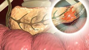 Pankreas kanseri hakkında doğru bilinen 8 yanlış