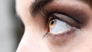 Göz Altı Torbaları Kimlerde Daha Çok Oluşur