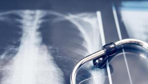 Akciğer sağlığını korumak genel vücut sağlığı için çok önemli