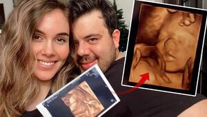 Berfu Yenenler bebeğinin ultrason görüntülerini paylaştı: Burnu yine sana benziyor kocam tebrikler