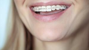 Ortodontik tedaviler hakkında merak edilenler