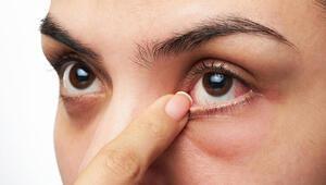 Pandemi sürecinde göz sağlığına dikkat Bu şikayetler artabilir