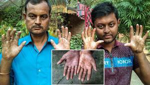 Bangladeşte parmak izi olmayan adam görenleri şaşırtıyor