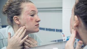Lupus Hastalığı Nedir Lupus Hastalığı Kimlerde Görülebilir