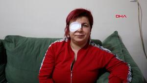 Alerji olan kadının derisi döküldü, sağ gözü görme kaybı var