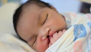 Dudak damak yarıklı bebekleri doğmadan önce fark etmek mümkün mü