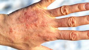 """Cildinizdeki kırmızımsı ve kaşıntılı lekelere dikkat Sebebi """"soğuk alerjisi"""" olabilir"""