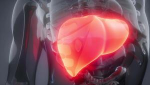 Bu faktörlere dikkat Karaciğerde siroza neden olabilir