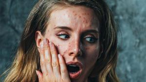 Halk arasında 'kelebek hastalığı' olarak biliniyor… Stres en büyük tetikleyicisi