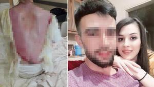 Eşini ve 1,5 yaşındaki kızını haşladı: Kazara oldu