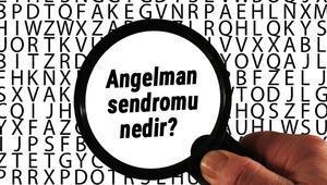 Angelman sendromu nedir, belirtileri nelerdir