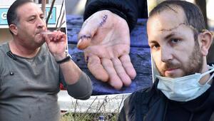 Kayınpederi tarafından bıçaklanan damat konuştu: Asıl mağdur benim