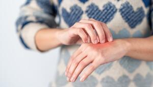 Uzmanlar uyardı: Deri hastalıkları korona virüs belirtisi olabilir
