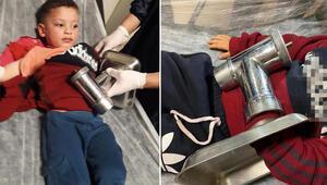 Kahreden olay 3 yaşındaki Ahmet, elini kıyma makinesine kaptırdı