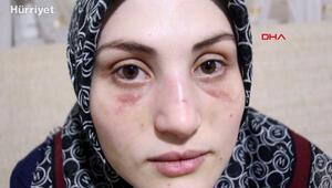 Eşinden şiddet gören genç kadın, yaşadığı işkence anlarını anlattı