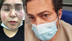 Almanya'da yine polis skandalı 17 yaşındaki Türk kızıyla babası hastanelik oldu