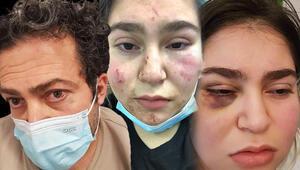 Almanyada polis dehşeti İki yumruk atarak beni tutup yere fırlattı