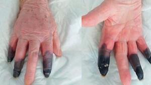 Kovid-19a yakalandı, kangren olan parmaklarını kaybetti