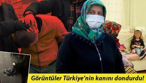 Samsunda eski eşinin dövdüğü kadının annesi: Torunum babamı görürsem taş atarım diyor