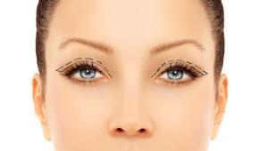 Göz Kapağı Estetiği Kimler İçin Uygun