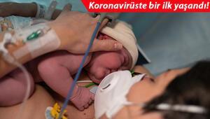 Son dakika haberler... Dünyada bir ilk Kovid-19 aşısı olan annenin bebeği antikorla doğdu