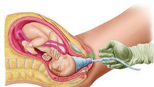 Bebek plasentası nedir, nasıl oluşur