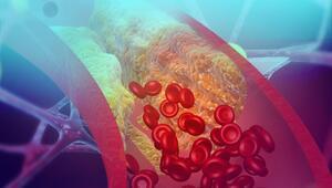 Ateroskleroz (damar sertliği) nedir ve nasıl tedavi edilir