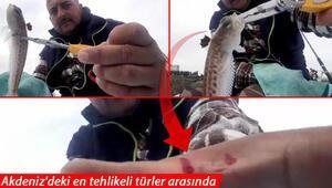 Antalyada zehirli balığın anlık teması, balıkçıyı hastanelik etti