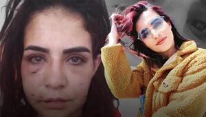 Genç kadına araç içinde dayak iddiasına tutuklama