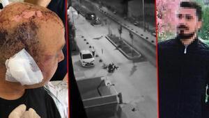 Görüntüler olay olmuştu Eskişehirde telsizle dövülen polis: Gözlerimi bir gün sonra açtım