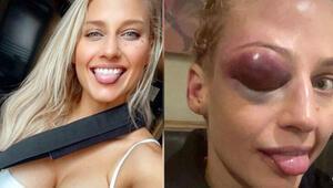 Avustralyalı boksör tanınamaz hale geldi Sol gözü...