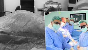 Doktorları bile şaşırtan ameliyat