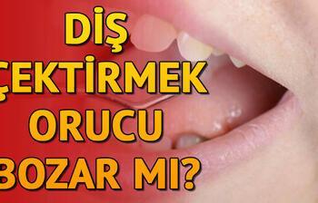 Diş çektirmek orucu bozar mı? Oruçluyken diş çektirilir mi?