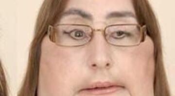 Connie Culp'ın yüzüne yeni bir yüz nakledildi