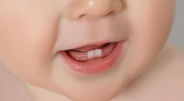 Bebekler diş çıkarma döneminde nasıl rahatlatılabilir