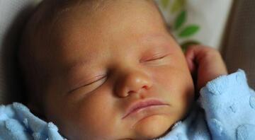 Yenidoğan bebeklerde sarılık neden olur, nasıl geçer