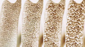 Kemik erimesi neden olur Kemik erimesine karşı 6 etkili önlem