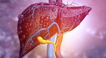 Karaciğer yağlanmasına dikkat Bu belirtiler varsa siz de risk altındasınız