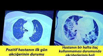 Koronavirüse yakalanıp ilaç kullanan ve kullanmayan bir hastanın akciğerlerindeki inanılmaz fark