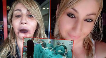 Estetik ameliyat sonrası dudağı çürümüştü Songül Uzunoğlu doğal görünümüne kavuşacak