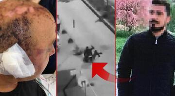 Eskişehirde polis memurunu telsizle dövmüştü Yeni gelişme