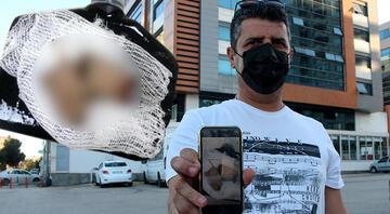 Adanada elinde havai fişek patladı, parmakları koptu Sosyal medyadan sahibini aradı