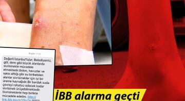 İstanbuldaki sivrisinek kâbusu büyüyor İBB alarma geçti: SMS ile uyarı