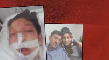 Kocaelideki dehşette yeni gelişme Ağır yaralanan kızın babasından yürek yakan sözler