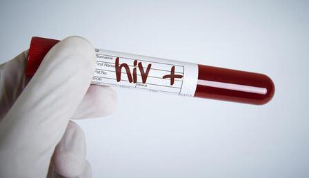 26 bin kişi HIV pozitif
