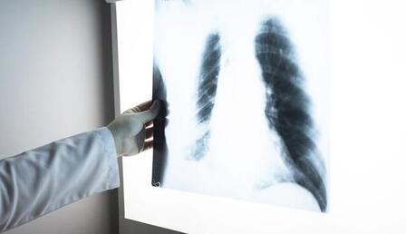 Amerikan Kanser Derneği: Ölümlerde rekor düşüş var