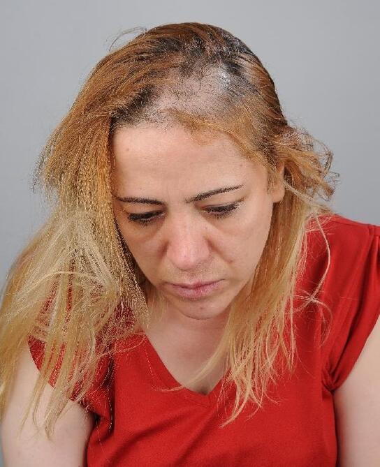Sağlık çalışanına çirkin saldırı: Dövüp, saçlarını yoldu