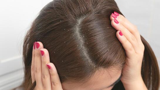 Saç kepeğine ne iyi gelir, nasıl geçer? Saç kepeğine karşı doğal çözümler