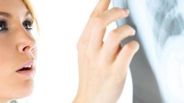 Akciğer kanserine yılda 20 bin kurban